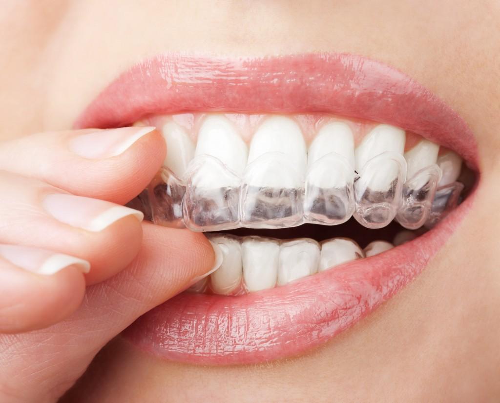 qué es la ortodoncia invisible