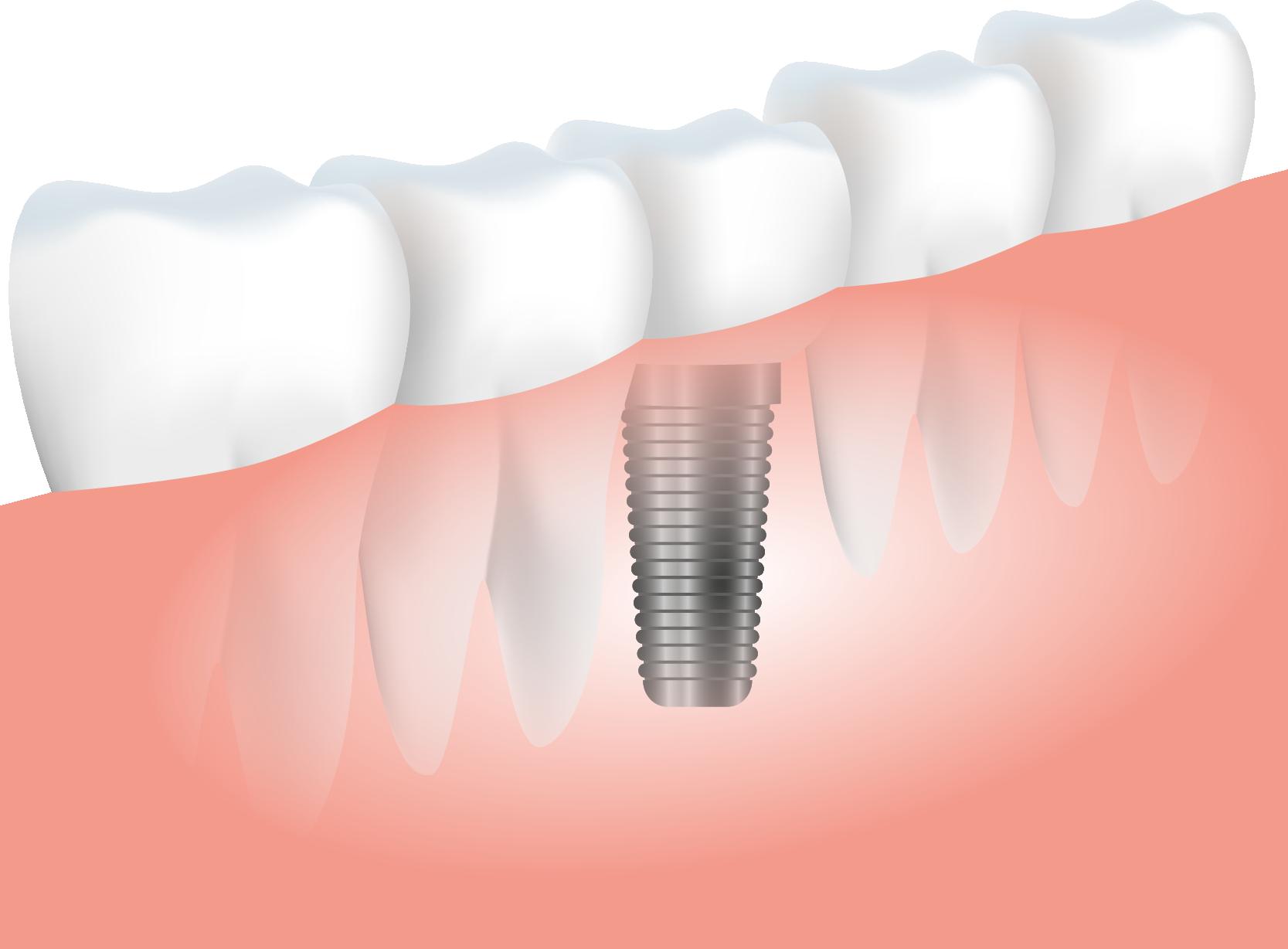 clinica-dental-esplugues-virgen-de-la-merced-implante-dental