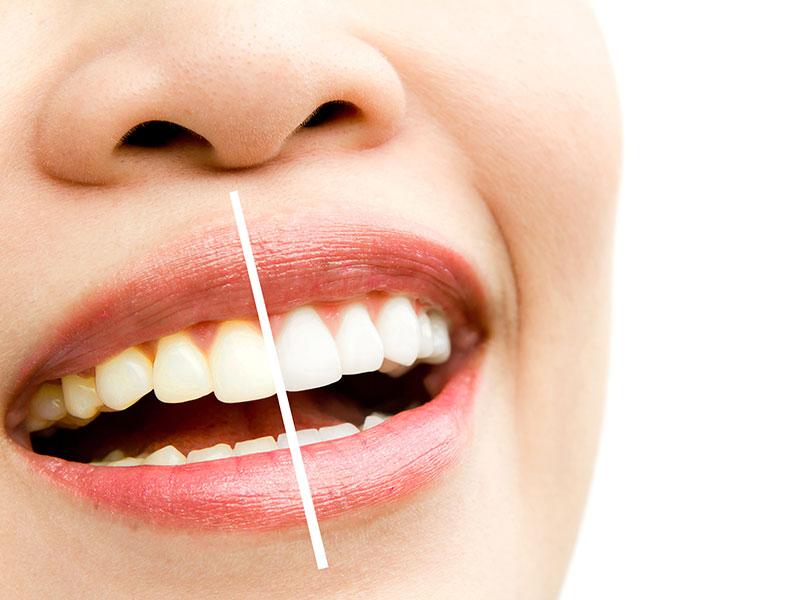 kit-blanqueamiento-dental-virgen-merced