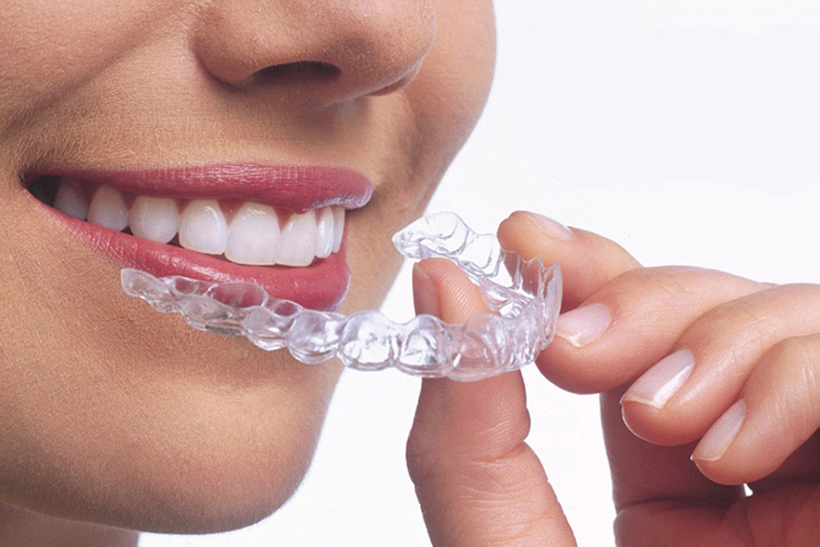 ortodoncia-invisible-en-esplugues-de-llobregat